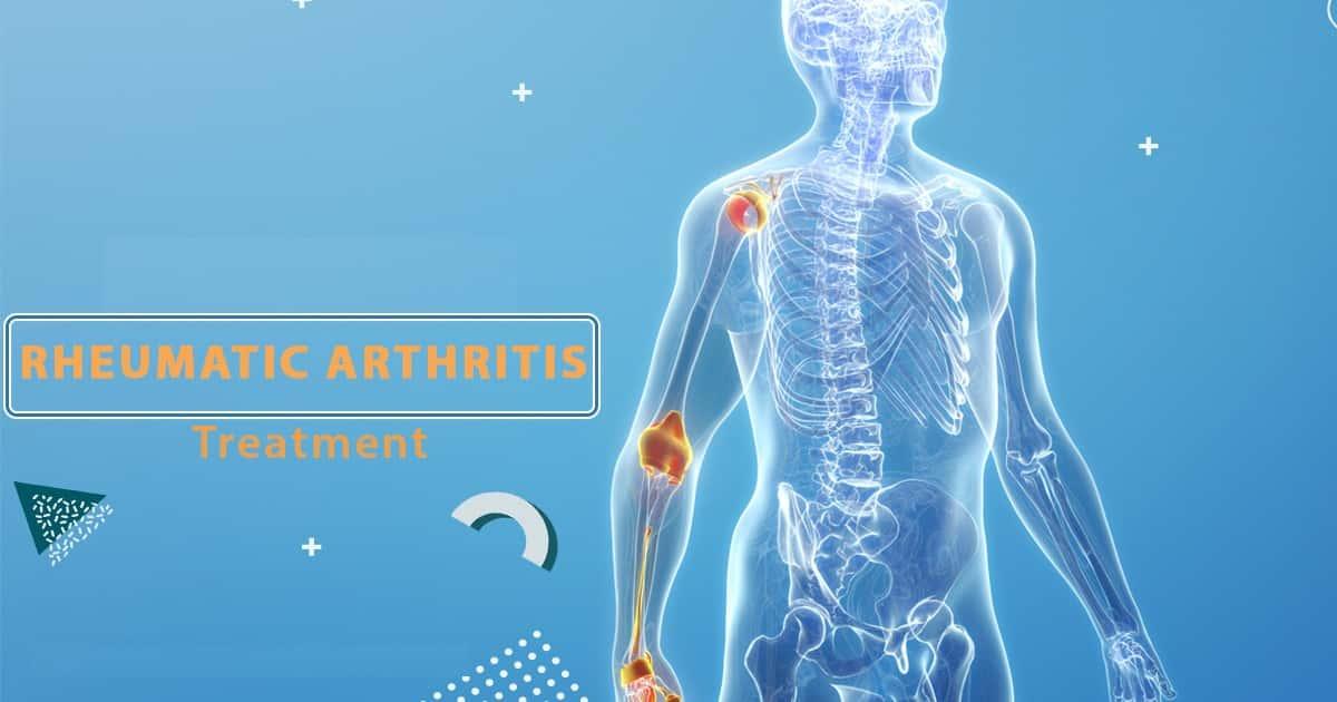 You Must Know About Rheumatic Arthritis